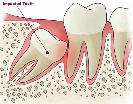 После удаления зуба мудрости сместились зубы